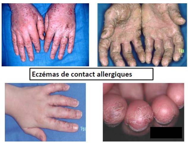 Les désinfectants peuvent provoquer des eczémas de contact allergiques